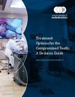 Treatment Options for the Compromised Tooth A Decision Guide www
