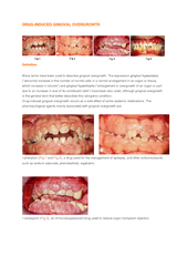 DRUG-INDUCED GINGIVAL OVERGROWTH