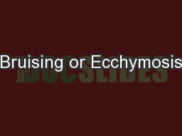 Bruising or Ecchymosis PowerPoint PPT Presentation