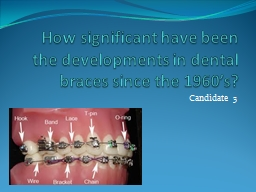 How significant have been the developments in dental braces