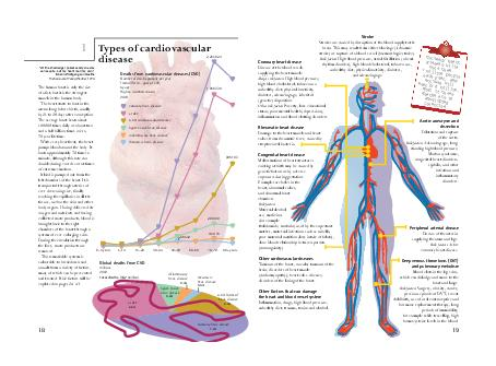 Aortic aneurysm and dissection Dilatation and rupture of the aorta