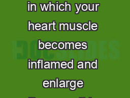 Cardiomyopathy INF  What is cardiomyopathy ardiomyopathy is a condition in which your heart muscle becomes inflamed and enlarge Because it is enlarged  your heart muscle is stretched and becomes weak