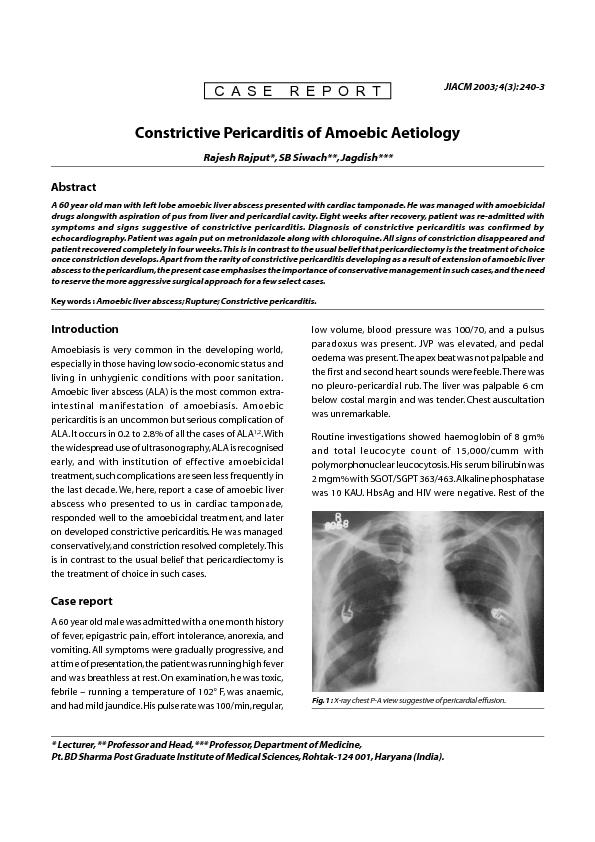 Fig. 1 : X-ray chest P-A view suggestive of pericardial effusion. ...