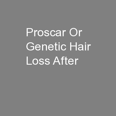 Proscar Or Genetic Hair Loss After