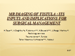 MR Imaging of fistula: Its inputs and implications for su PowerPoint PPT Presentation