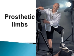 Prosthetic limbs PowerPoint PPT Presentation