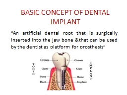 BASIC CONCEPT OF DENTAL IMPLANT PowerPoint PPT Presentation