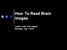 How To Read Brain Images