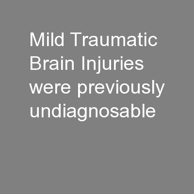 Mild Traumatic Brain Injuries were previously undiagnosable PowerPoint PPT Presentation