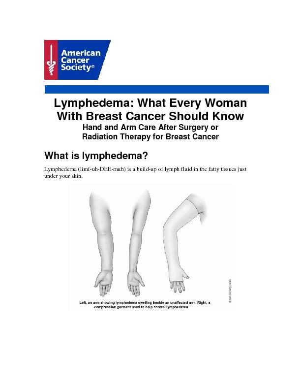 Lymphedema: What Every Woman With Breast Cancer Should Know Hand and A