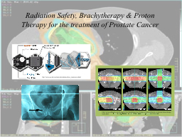 Radiation Safety, Brachytherapy & Proton Therapy for th