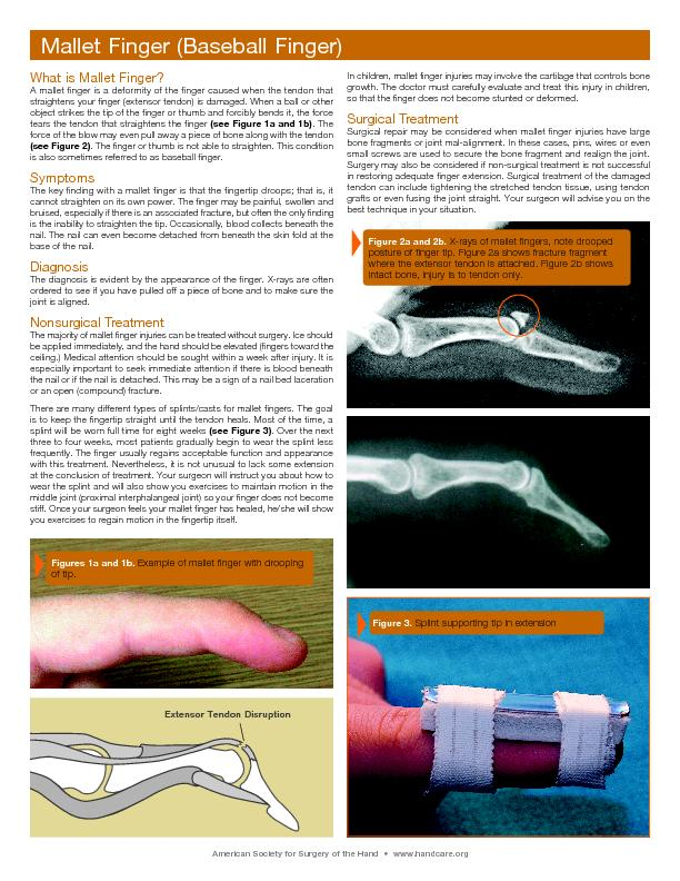 What is Mallet Finger?A mallet finger is a deformity of the finger cau