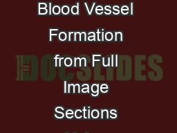 Understanding Images Definiens Developer and Definiens Architect Analysis of Blood Vessel Formation from Full Image Sections Using Definiens Developer and Definiens Architect Introduction The search