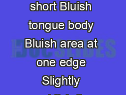 Tongue Signs Associated with Blood Stasis Tongue description Pale and short Bluish tongue body Bluish area at one edge Slightly reddish tip Light yellow dry coating Chinese diagnosis Spleen qi decien