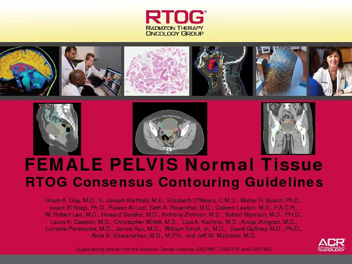 FEMALE PELVIS Normal TissueRTOG Consensus Contouring GuidelinesHiram A