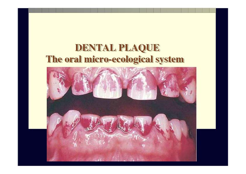 DENTAL PLAQUE     The oral micro-ecological system