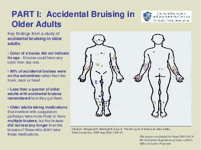 PART I Accidental Bruising in Older Adults Citation Mosqueda L Burnight K Liao S