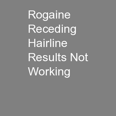 Rogaine Receding Hairline Results Not Working