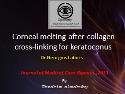 Corneal melting after collagen cross-linking for keratoconu