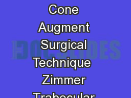 For use with NexGen LCCK and RH Knee Systems Zimmer Trabecular Metal Femoral Cone Augment Surgical Technique  Zimmer Trabecular Metal Femoral Cone Augment Surgical Technique Table of Contents Overvie