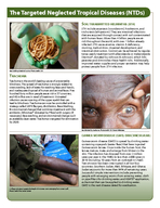 Center for Global Health Division of Parasitic Diseases and Malaria CSA The Targeted Neglected Tropical Diseases NTDs NCHOCERCIASIS ONCHO RIVER BLINDNESS Onchocerciasis is caused by parasitic worms tr