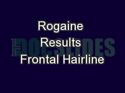 Rogaine Results Frontal Hairline