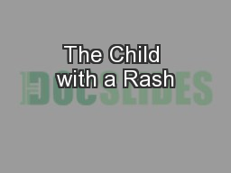 The Child with a Rash PowerPoint PPT Presentation