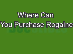 Where Can You Purchase Rogaine