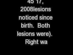 45 17, 2008lesions noticed since birth.  Both lesions were).  Right wa