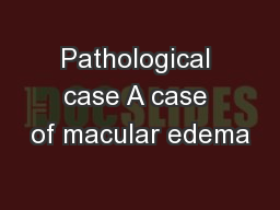 Pathological case A case of macular edema PowerPoint PPT Presentation