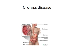 Crohn,s  disease DEFINITION.