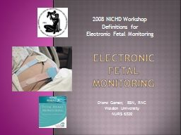 Electronic  Fetal Monitoring PowerPoint PPT Presentation