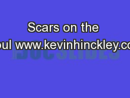 Scars on the Soul www.kevinhinckley.com PowerPoint Presentation, PPT - DocSlides