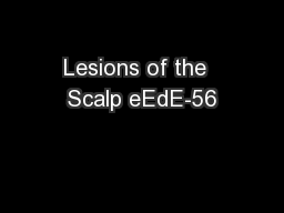Lesions of the  Scalp eEdE-56
