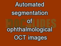 Automated segmentation of ophthalmological OCT images PowerPoint PPT Presentation