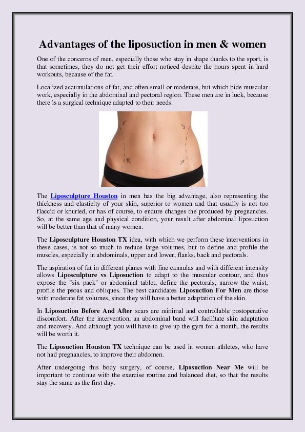 Advantages of the liposuction in men & women