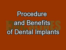 Procedure and Benefits of Dental Implants