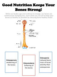 Good Nutrition Keeps Your Bones Strong!