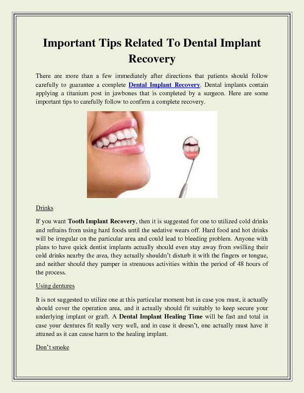 Important Tips Related To Dental Implant Recovery