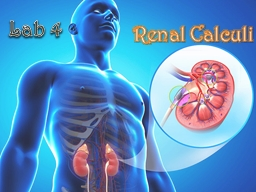 Renal Calculi Lab 4 What