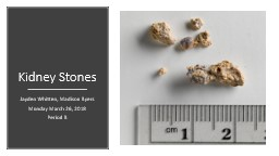 Kidney Stones Jayden Whitten, Madison