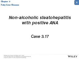 Non-alcoholic steatohepatitis with positive ANA