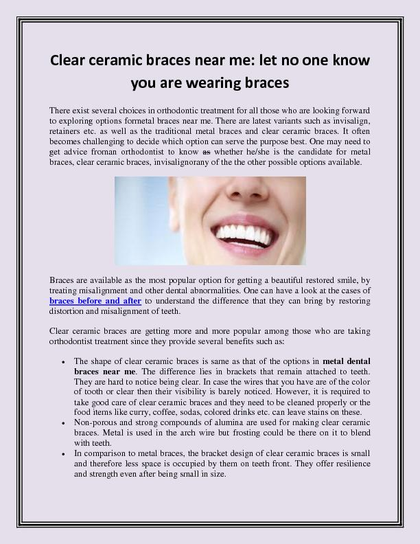 Clear ceramic braces near me let no one know you are wearing braces