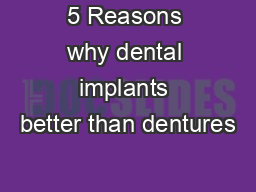 5 Reasons why dental implants better than dentures PDF document - DocSlides