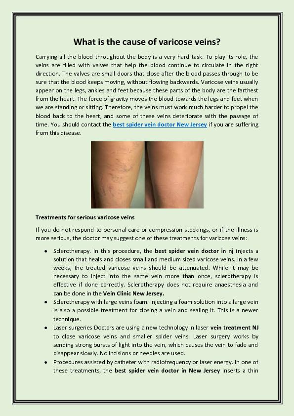 What is the cause of varicose veins