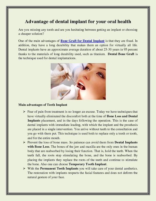 Advantage of dental implant for your oral health