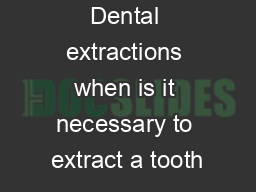 Dental extractions when is it necessary to extract a tooth