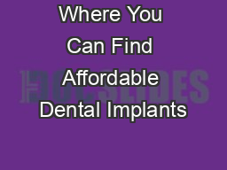 Where You Can Find Affordable Dental Implants