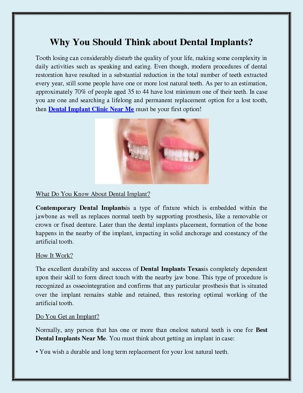 Why You Should Think about Dental Implants