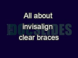 All about invisalign clear braces